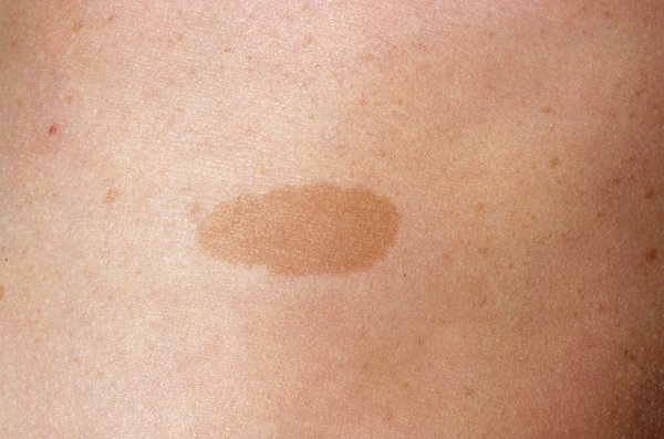 Close-up of a flat, light brown patch on a person's skin