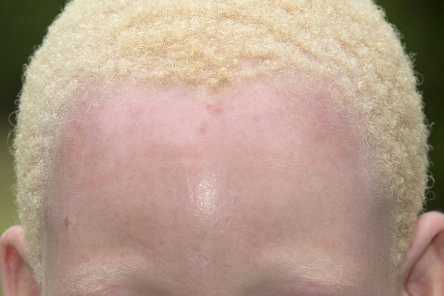 Picture of a young girl with albinism