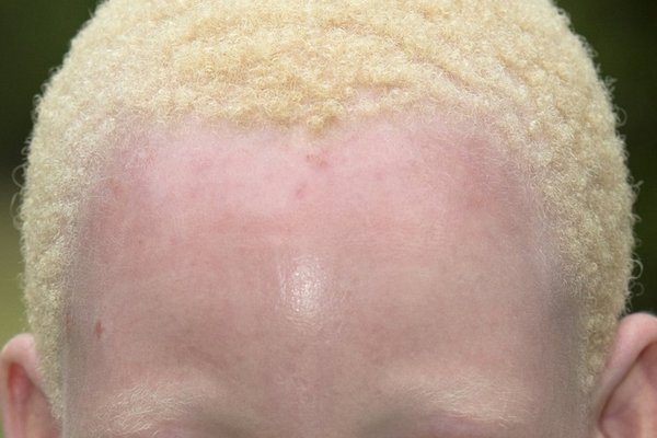 An African girl with albinism. She has pale skin and short, light blonde hair.