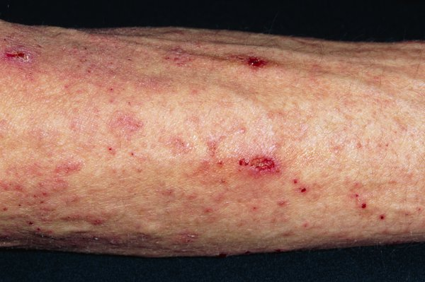 An arm with a red rash of small scabies spots
