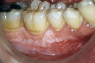 A faint white patch on the gums, just below the teeth