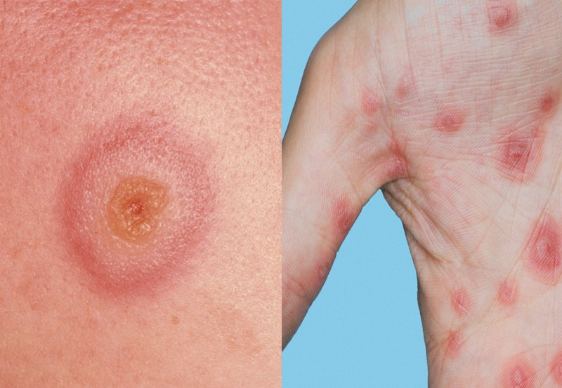 Picture of erythema multiforme