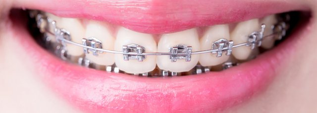 Braces And Orthodontics Nhs