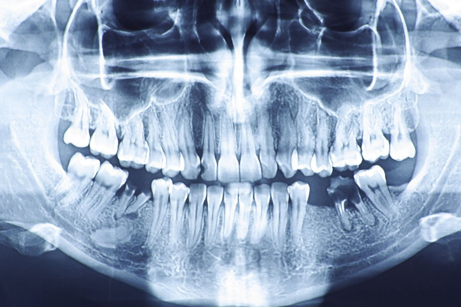 Gum disease may increase your risk of health problems in other areas of the body