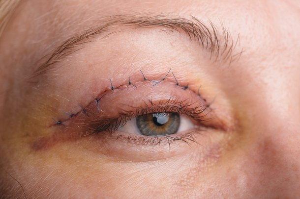 Eyelid Surgery Nhs Uk