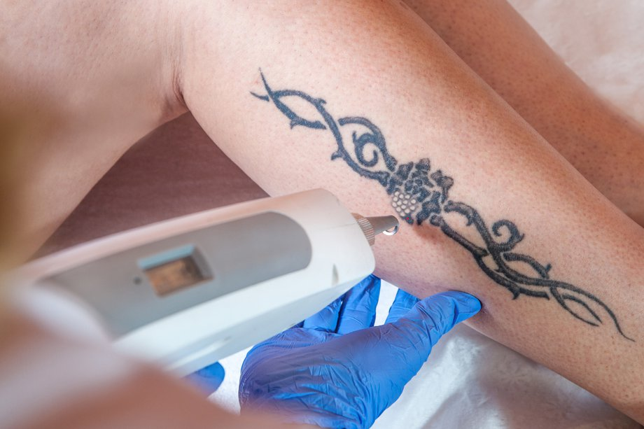Cosmetic procedures - Tattoo removal - NHS