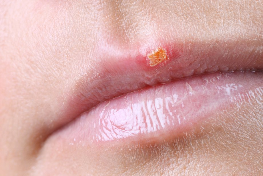 A cold sore on a top lip