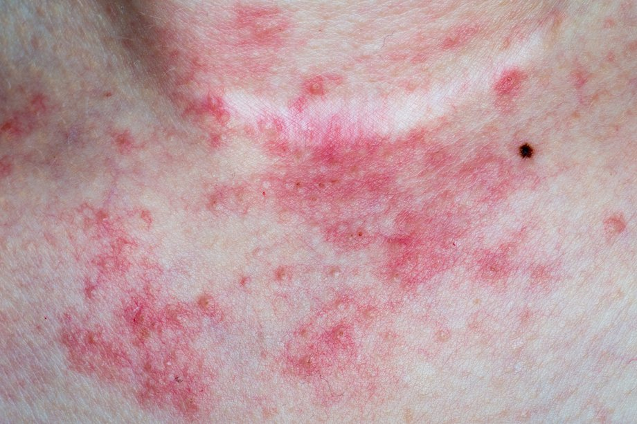 Blotchy red rash on chest and neck