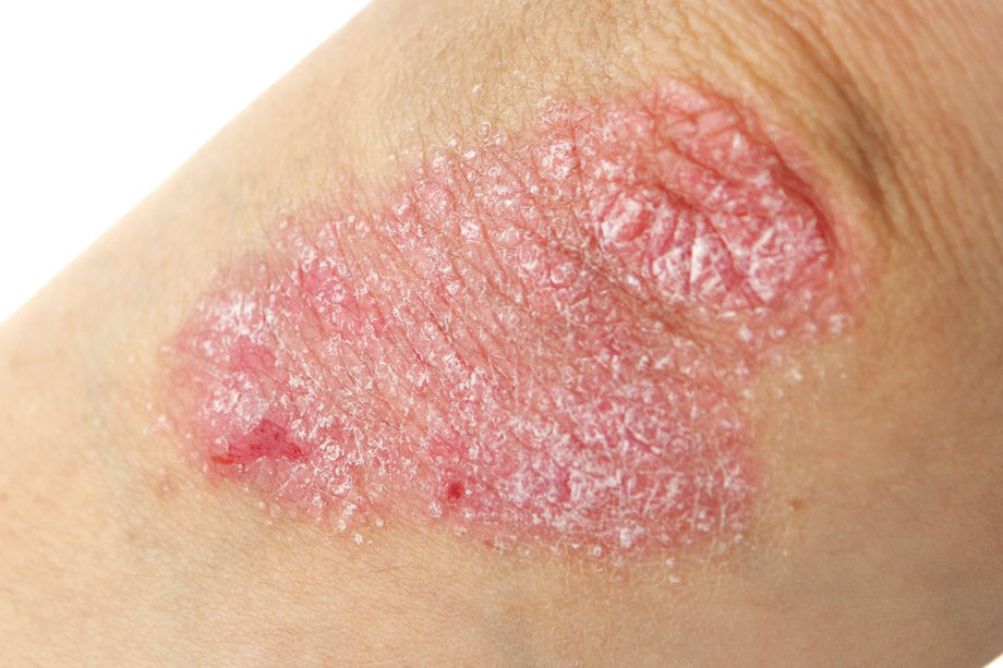 Elbow with a flaky red patch of skin
