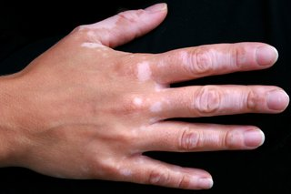 A hand with vitiligo patches of pale skin on the fingers and back of the hand