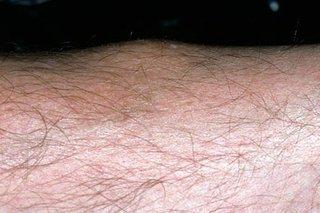 Erythema nodosum - NHS