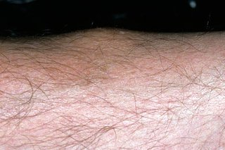 Erythema nodosum bump on the calf
