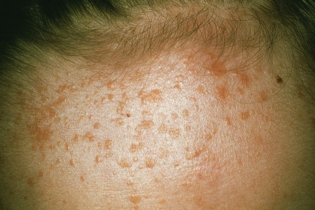 A collection of flat warts on a forehead.